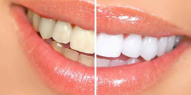 Diş Beyazlatmada Nelere Dikkat Edilmeli?