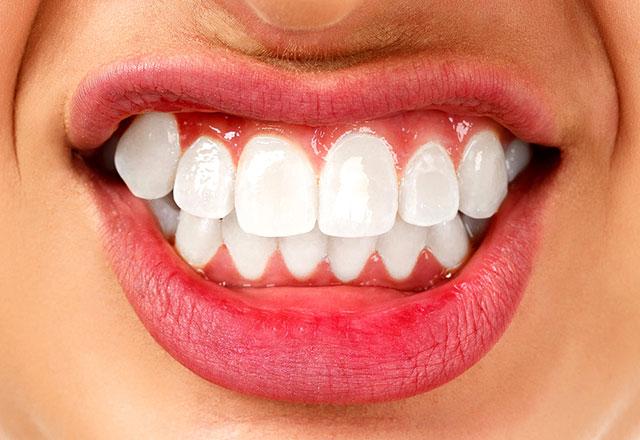 Diş Sıkma Tedavi Seçenekleri