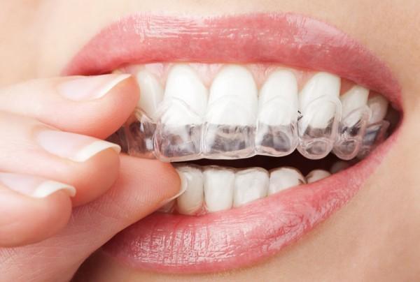 Ortodontide Şeffaf Plak Tedavileri İstenilen Sonucu Verir mi?