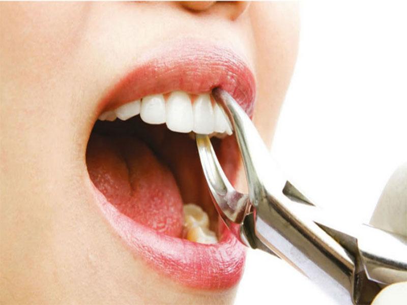 Diş Çekimi Sonrasında Dikkat Edilmesi Gerekenler