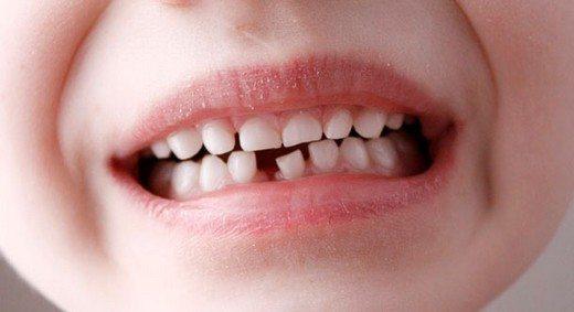 Eksik Dişlerin Sağlığa Etkileri Nelerdir?