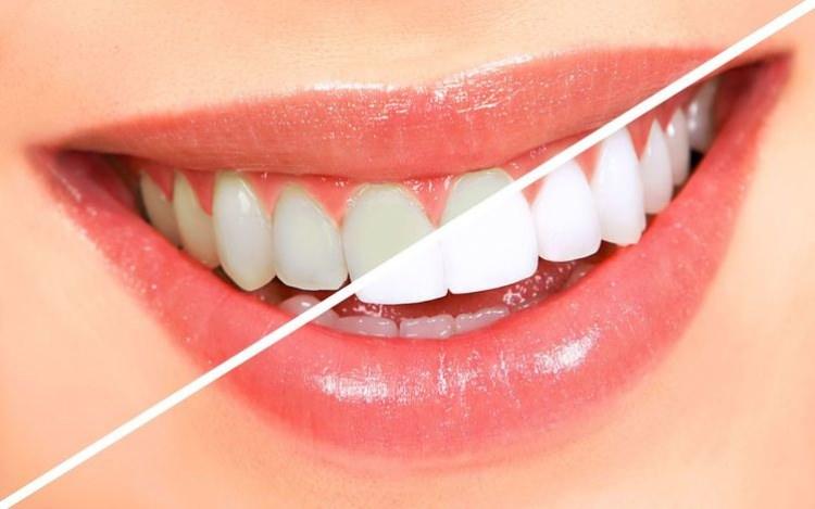 Diş Beyazlatma (Bleaching) Nasıl Yapılır?
