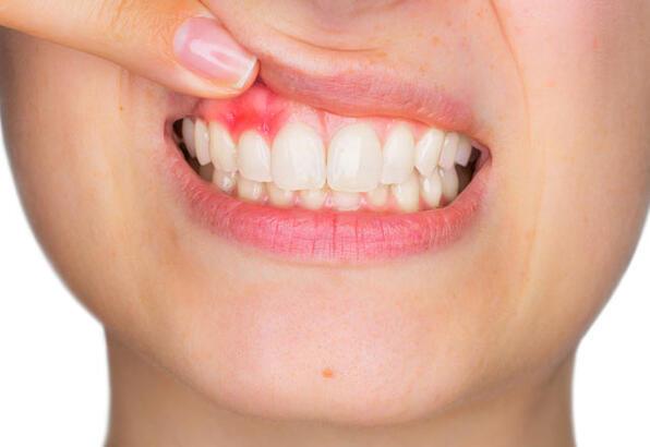 Diş Etlerinin Fırçalarken Kanaması Normal Mi?