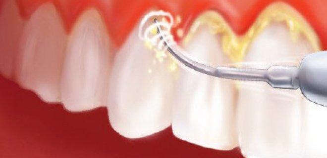 Diş Taşlarını Temizlemek Zararlı Mıdır?