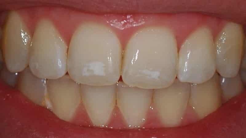 Dişlerde Beyaz Lekelerin Tedavisi