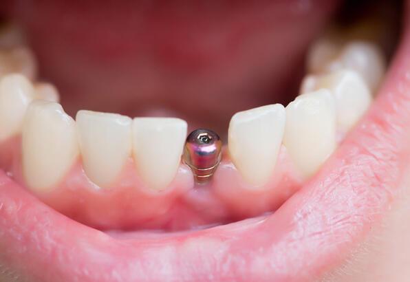 Eksik Dişlerin Tedavisi Neden Önemlidir?