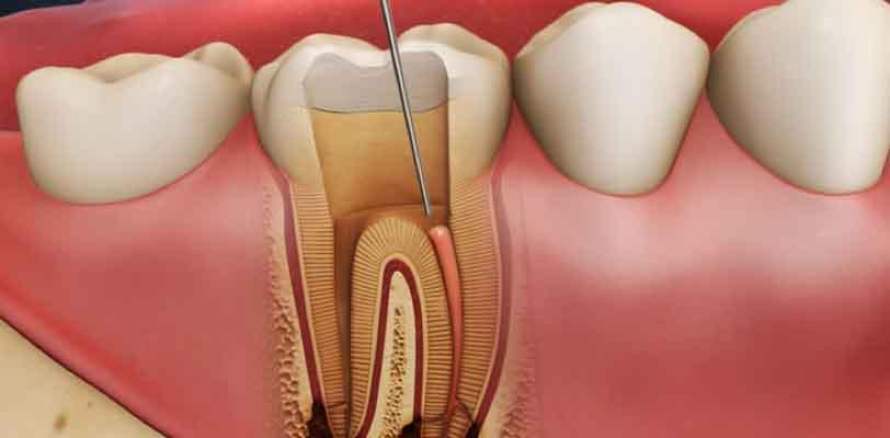 Kanal Tedavili Dişlerde Lezyon Oluşması Sonrası Tedavi Nasıl Yapılmalıdır?